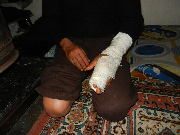 Alluhud's hand in a cast, from continuously slamming his hand from nervous breakdowns